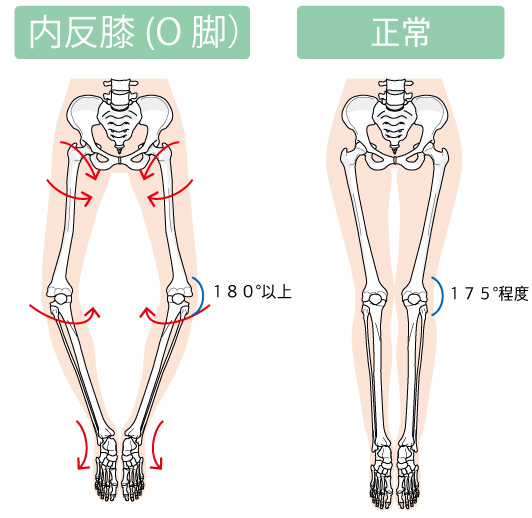 O脚な脚と正常な脚