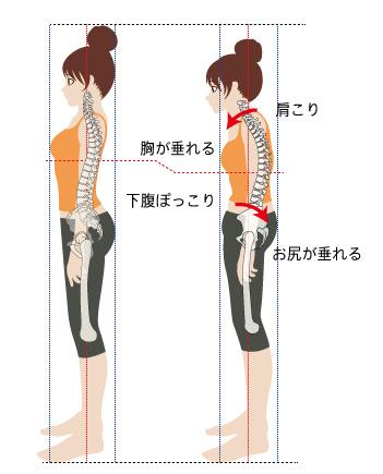 骨盤が歪むと背骨も歪む